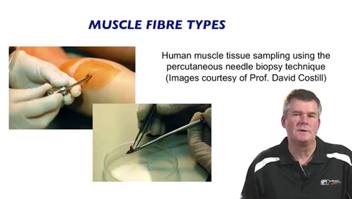 muscle fiber types | slow-twitch and fast-twitch muscle fibers., Muscles